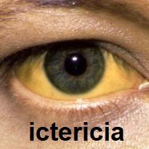 Icteric