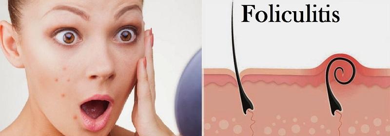 acné por exceso de vitamina B12